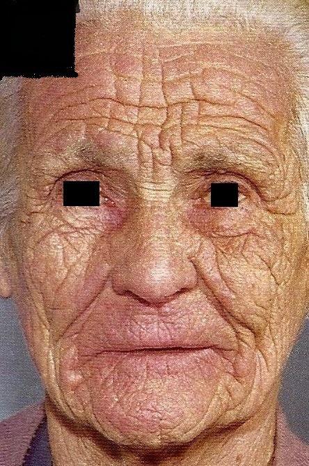 Vieillissement prématuré de la peau .. : Forum Bronzage, soleil et UV