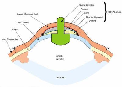 Osteo odonto kerato prothesis