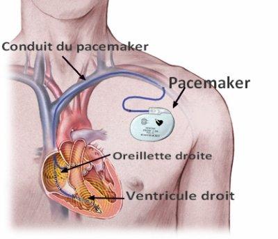 Blog de coeurartificiel page 2 vers le coeur for Pacemaker triple chambre