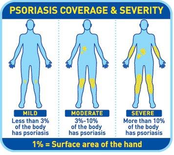 Les moyens efficaces du psoriasis sur les coudes