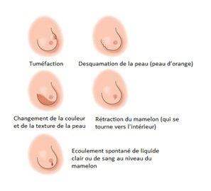 Quels sont les signes du cancer du sein qui - gojimagbe