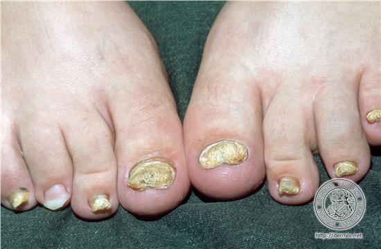 Les mélanges des enfants atopitcheskim par la dermatite