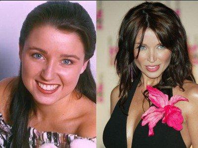 Dannii Minogue avant et après chirurgie esthétique