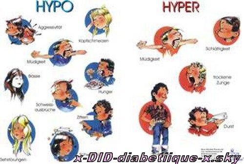 symptomen suikerziekte type 2