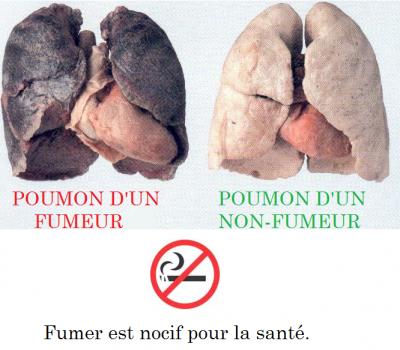 A cessé de fumer la peau est devenue gras