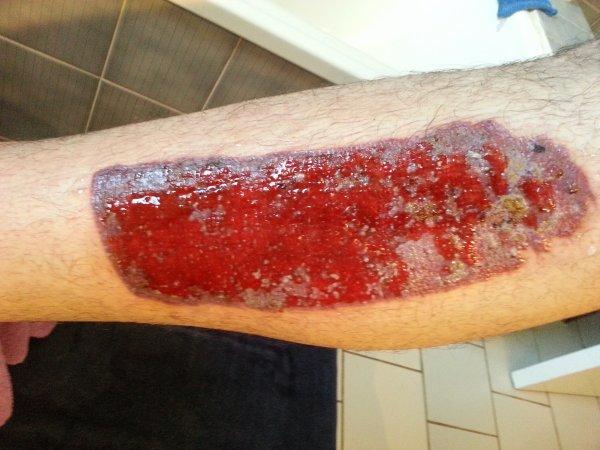 1 mois aprer la greffe de peau la grefe c est bien passer - Retour de couche au bout de combien de temps ...