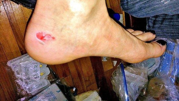 seconde peau pour les pieds