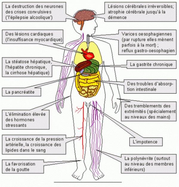 Le traitement contre lalcoolisme par lacuponcture