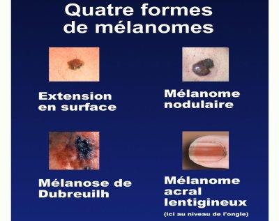 Le melanome blog de expose soleil - Coup de soleil sur le visage que faire ...