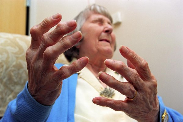 How I Found Out I Was Developing Arthritis