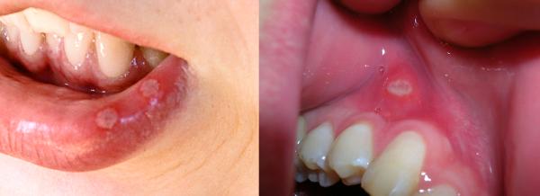 Plaies du pnis - Causes et Diagnostic - Symptme Checker