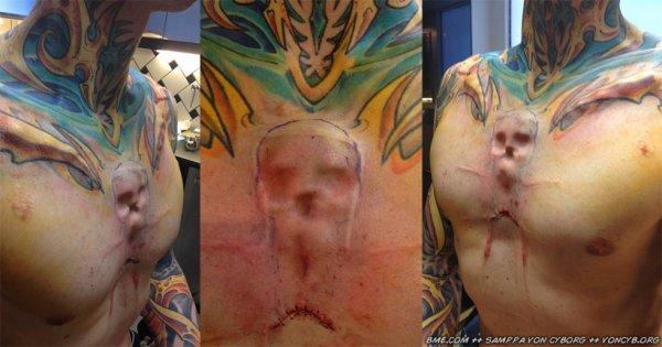 implant skull