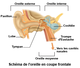 Mal de gorge : comment soigner les angines - doctipharmafr