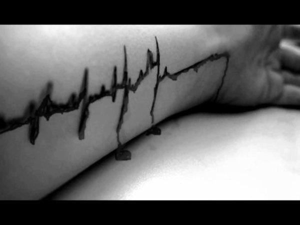 Symptômes d'une personnes ayant des crises suicidaires.