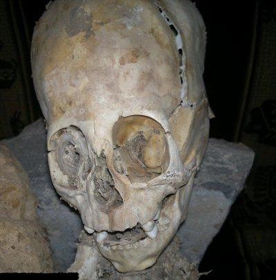 Momie humanoïde !