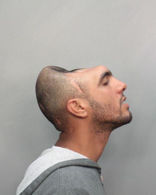 Il ne vit qu'avec la moitié de son crâne !