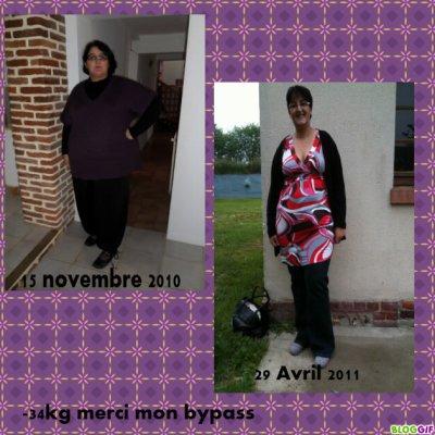 Voila un petit montage 5 mois et demi post op' et - 34 kg