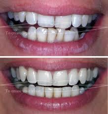 L'appareil dentaire