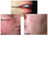 L'Acné : nos conseils et produits contre l'acné
