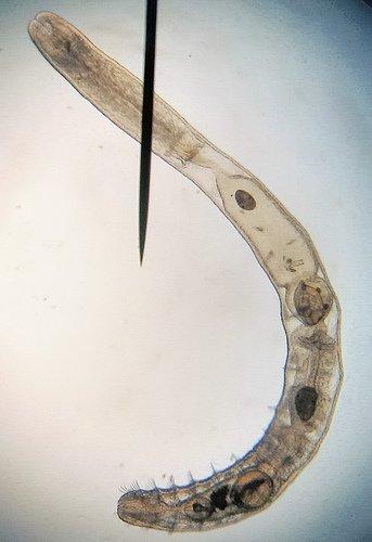Les annélides: les clitellates