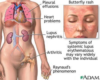 Journée mondiale du lupus - les cibles de cette maladie