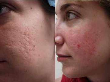Managing Acne (pimples)