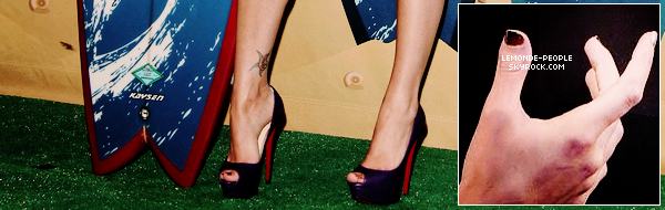 """Et non la belle Megan Fox n'est pas si parfaite qu'elle en a l'air, en effet la jeune actrice élue  trois fois """"la femme la plus sexy de l'année"""" à un defaut (qui est aussi son complexe).  C'est l'un de ses pouces appelée brachydactylie, un terme médical signifiant  brièveté d'un ou de plusieurs doigts."""