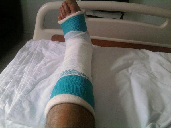 a tous mes ami(es) je me suis absenté ces derniers jours et ben voilà la cause une double fractures au niveau cheville pied gauche qui a necessité une opération.