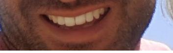 Derrière ce sourire se cache un prédateur
