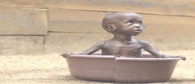 La famine dans la corne d'Afrique