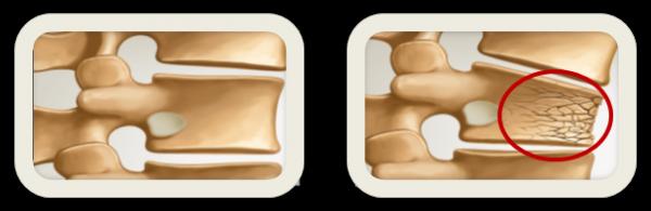 problème  d'ostéoporose