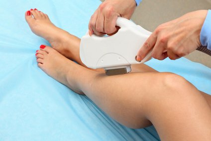 Laser Hair Removal in East Meadow NY - Benefits of Laser Hair Removal