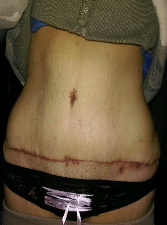 1 mois post op abdominoplastir