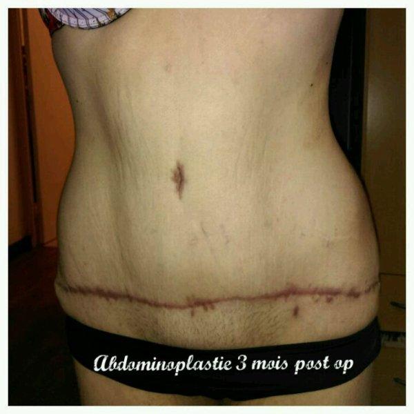 3 mois post opabdominoplastie