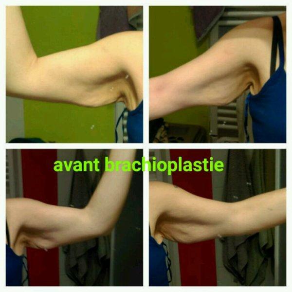 Lifting des bras j+7 et abdomiplastie 4 mois post op