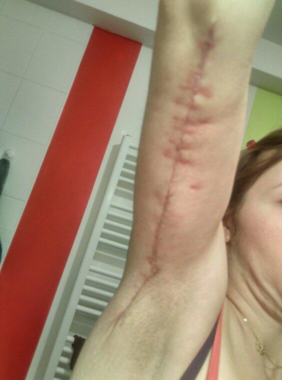5 mois post op abdominoplastie
