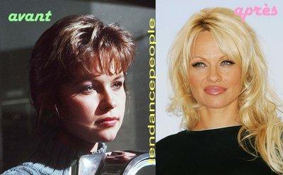 avant/après: Pamela Anderson