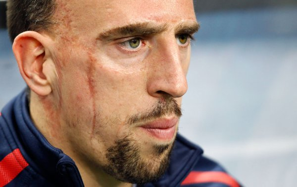 Ribery forfait
