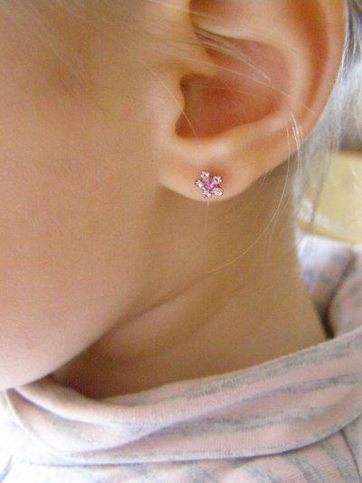 prothese boucle d'oreille