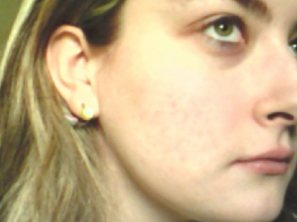 Photos de ma peau d'aujourd'hui [15.01.2012]