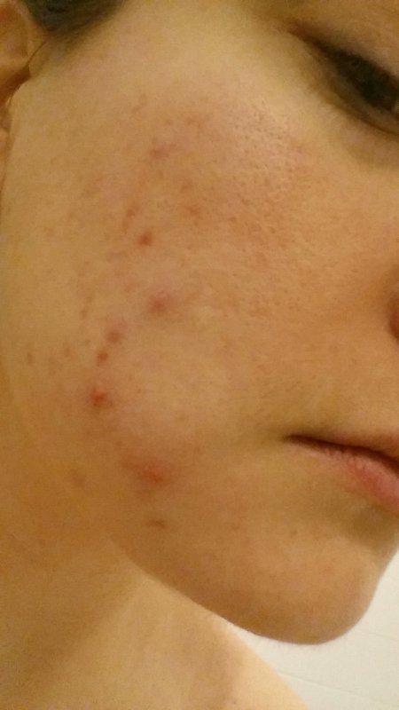 Photos de ma peau hier (c'est pareil aujourd'hui)