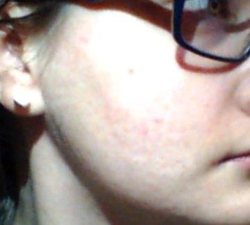 Ma peau aujourd'hui