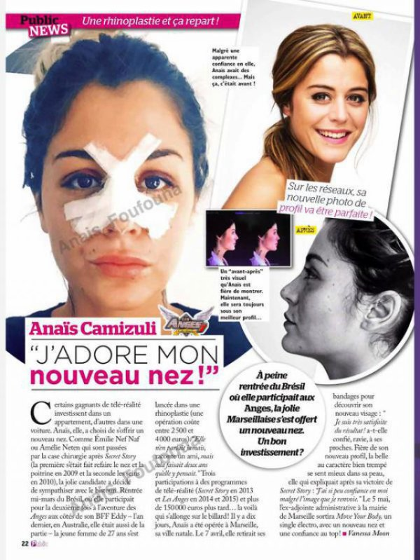 Secret Story - Anaïs Camizuli : Après les lèvres, maintenant le nez !