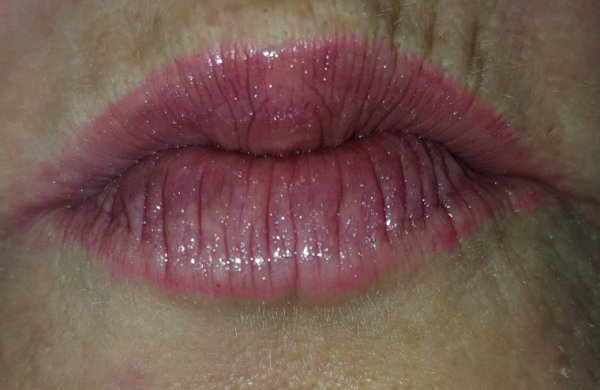 Kisss du jour