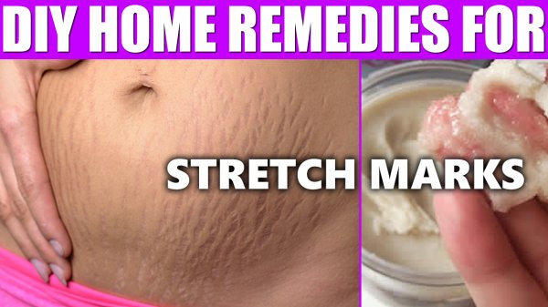 How To Remove Stretch Marks After Pregnancy - DIY Home Remedies