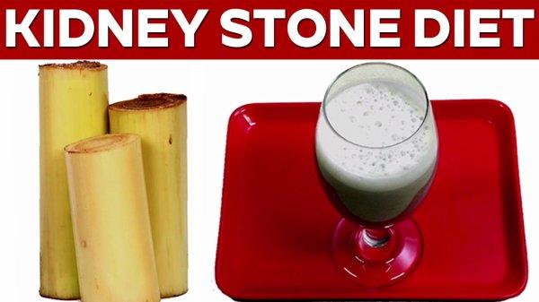 Diet for Kidney Stone Prevention & Dissolve Naturally