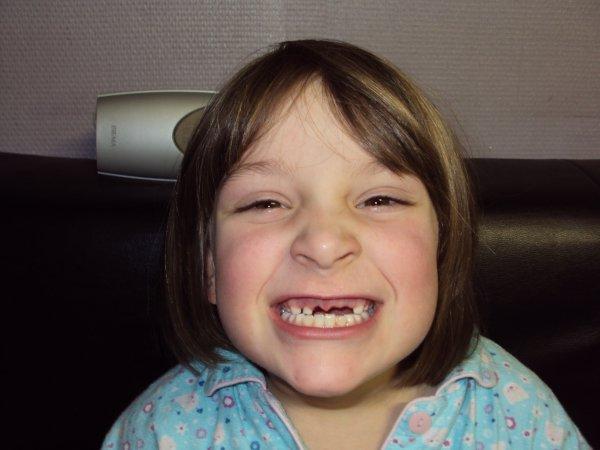Shana moins 4 dents ;-)