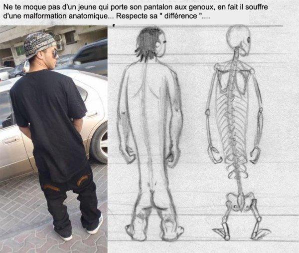 Ne te moque pas d'un jeune qui porte son pantalon aux genoux