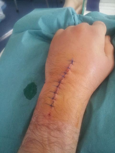 poigné. Déplacé, fracturé, ligament arraché et grosse luxation.