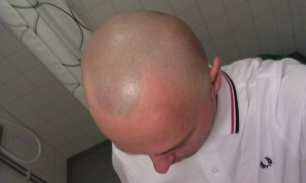 skin headshave